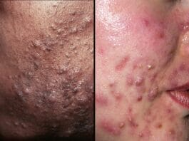About Common Skin Conditions