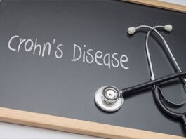 The 5 Kinds of Crohn's Disease What's Crohn's Disease? Crohn's disease causes chronic inflammation and erosion from the intestines or bowel. It may affect different parts of the bowel, stomach, or intestines. You will find five various kinds of Crohn's disease, each affecting various areas of the digestive system. There isn't any known reason for Crohn's disease. Experts think that it could be because of the defense mechanisms reacting to food or bacteria within the intestines or bowel lining. This really is considered to make the out of control inflammation connected with Crohn's disease. Treatment depends upon the kind and harshness of the condition. Each one of the five kinds of Crohn's disease is connected using its own signs and symptoms and particular parts of the digestive system: ileocolitis ileitis gastroduodenal Crohn's disease jejunoileitis Crohn's colitis Sometimes people experience several kind of Crohn's disease simultaneously. What this means is several areas of the digestive system might be affected at the same time. The 5 Kinds of Crohn's Disease Ileocolitis Many people with Crohn's disease are afflicted by ileocolitis. This type of Crohn's disease causes inflammation and irritation from the ileum (the low area of the small intestine) and colon. Individuals with ileocolitis can experience signs and symptoms for example: diarrhea significant weight reduction discomfort or cramping in the centre or lower-right region from the abdomen Ileitis Like ileocolitis, ileitis causes inflammation and irritation from the ileum. The signs and symptoms for ileitis overlap with individuals for ileocolitis. Individuals with ileitis might also develop fistulas (inflammatory abscesses) within the lower-right portion of the abdomen. Gastroduodenal Crohn's Disease Gastroduodenal Crohn's disease affects the stomach and duodenum (part one from the small intestine). Individuals with this particular type of Crohn's disease frequently experience nausea, insufficient appetite