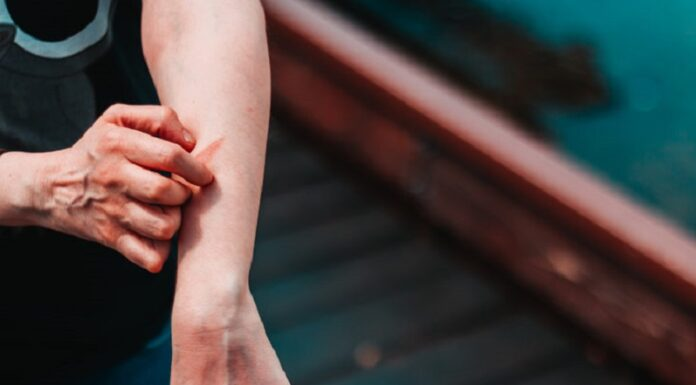 8 Hacks from your Eczema Veteran That Are Not About Skincare